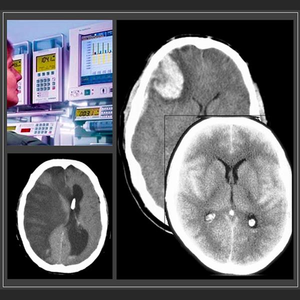 Neurocríticos